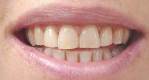 Resultat tandblekning efter