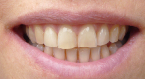 Tänderna före tandblekning